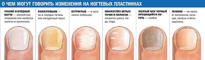 Грибковое заболевание кожи и ногтей фото