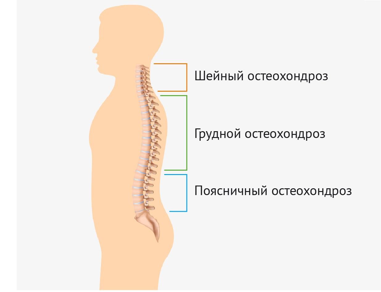 Физио лечение при артрозе