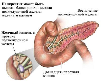 Что такое хронический панкреатит? Диагностика, симптомы и лечение ... | 320x400
